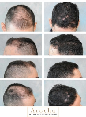 Arocha Hair Restoration